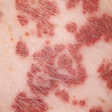 Как выглядит рожа у свиней: чем ее лечить и насколько она опасна